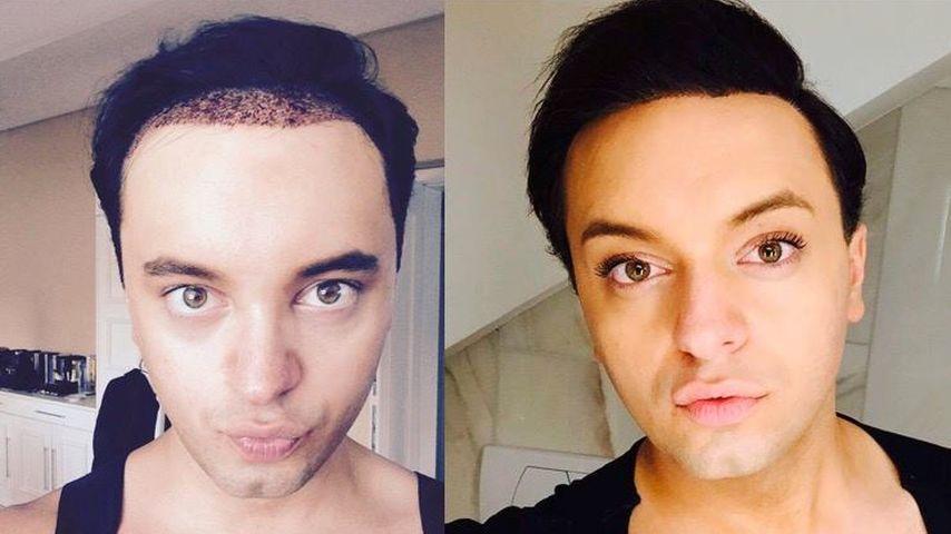 Nach Haartransplantation: So glücklich ist Julian Stoeckel