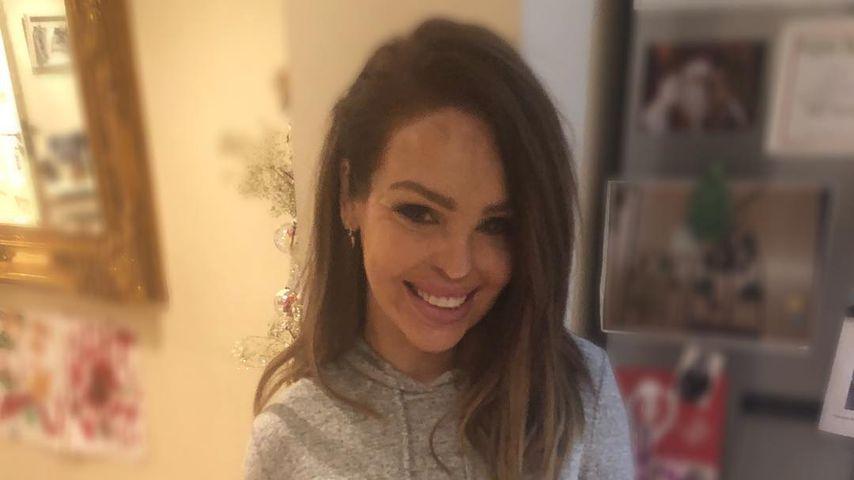 An Xmas: Säure-Opfer Katie Piper rührt Fans mit Rückblick!