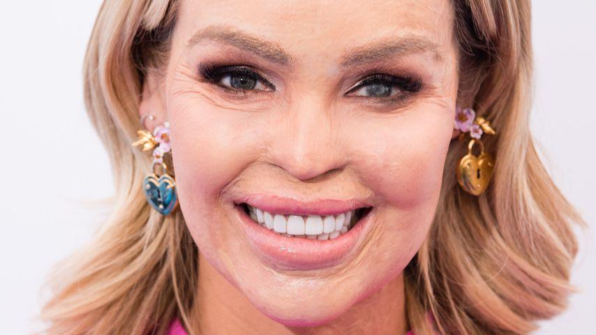Säure-Opfer Katie Piper: Babybauch von Giftqualle gestochen!