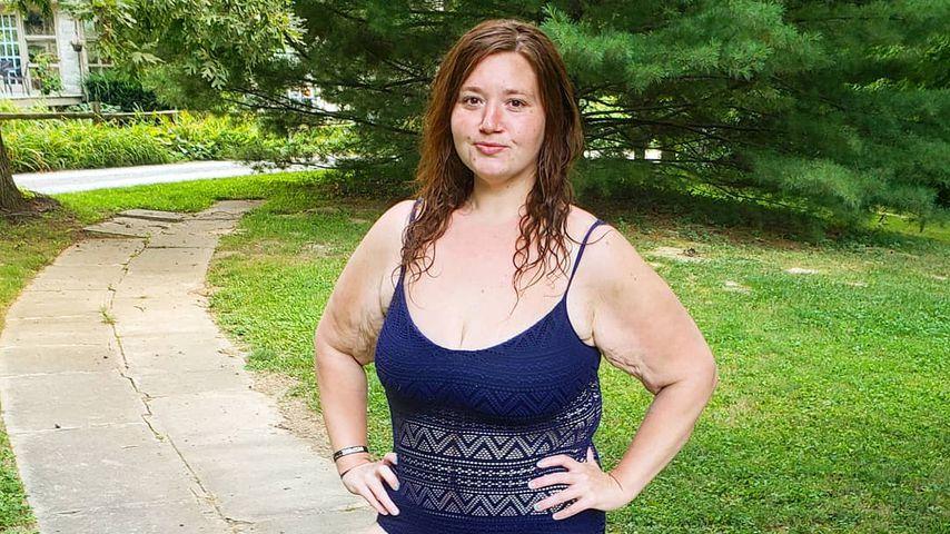 Diät-Star nahm 140 Kilo ab: Wie geht es Lexi Reed heute?