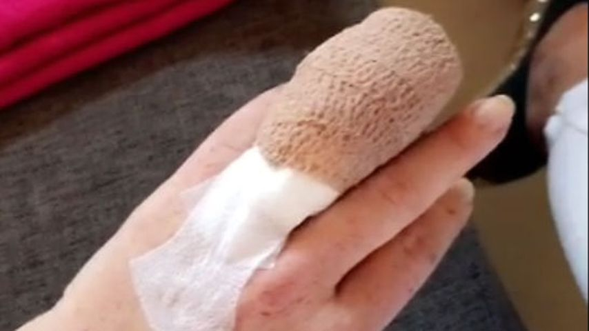 Lindsay Lohans Finger nach einer Operation