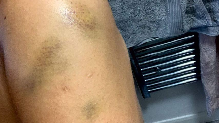 Malin Anderssons Arm