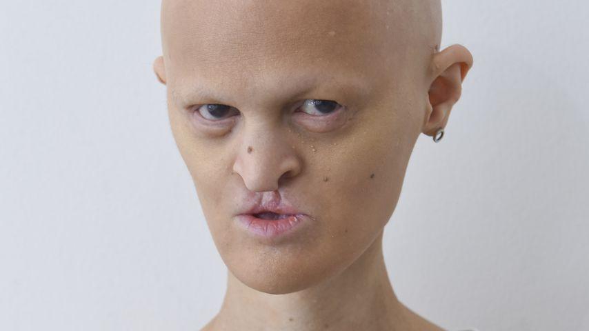 Model mit Gendefekt: Melanie Gaydos will nach Berlin ziehen