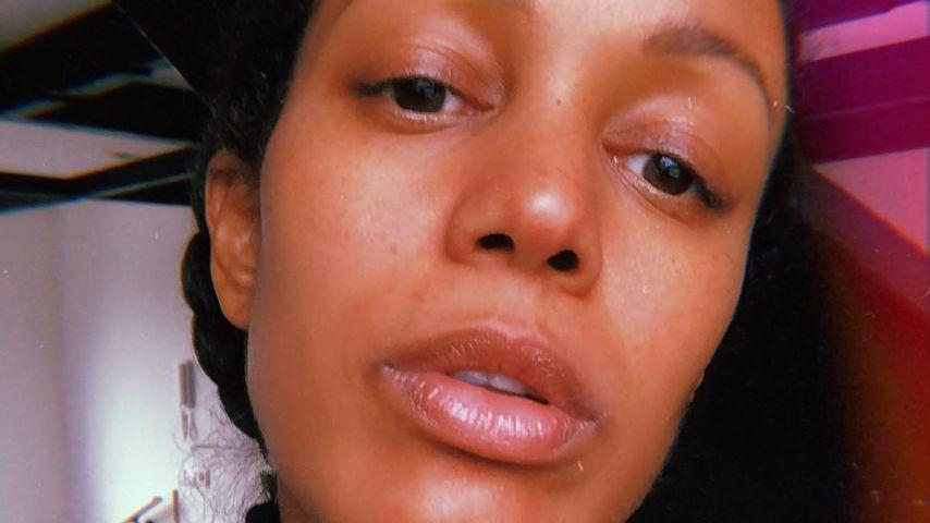 Wegen No-Make-up-Look: Milka Loff Fernandes wurde beleidigt