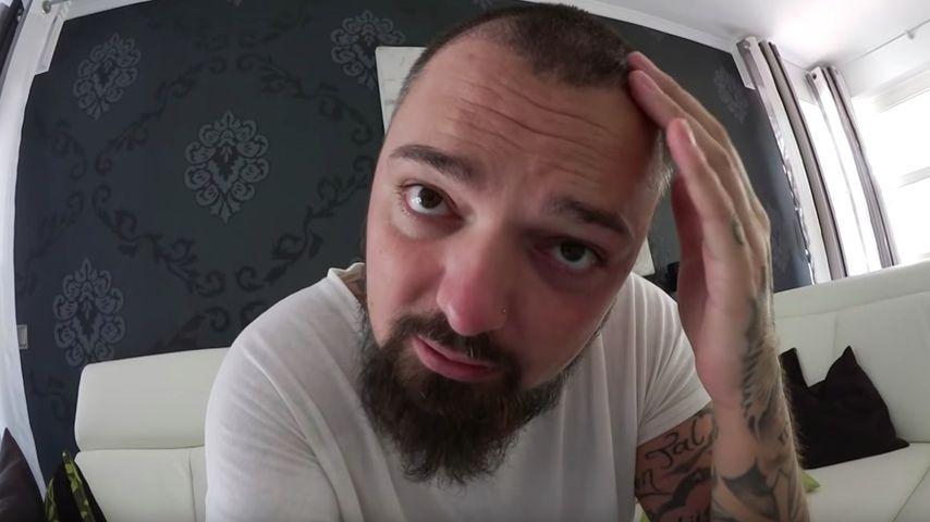Niklas Schröder drei Wochen nach seiner Haar-OP