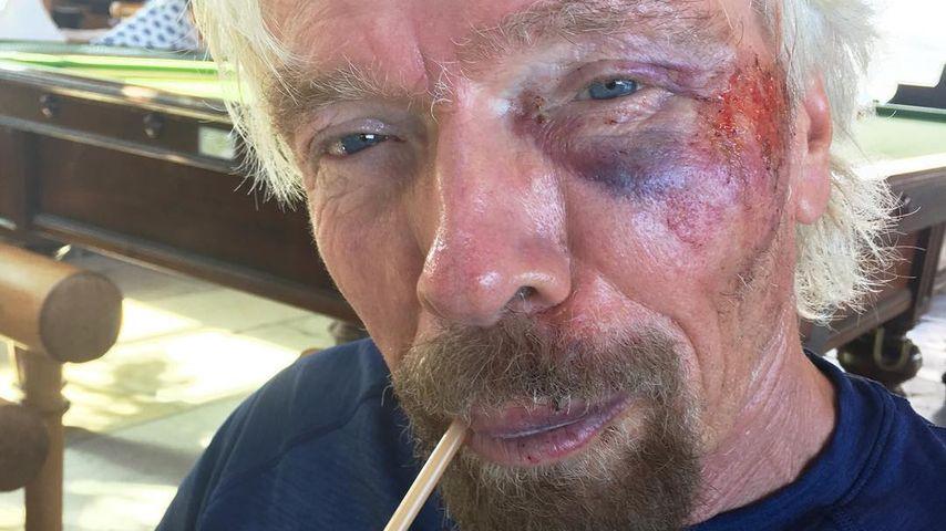 Fahrrad-Unfall: Milliardär Richard Branson fast gestorben!