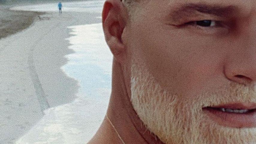 Hot or not? Sänger Ricky Martin hat seinen Bart blondiert