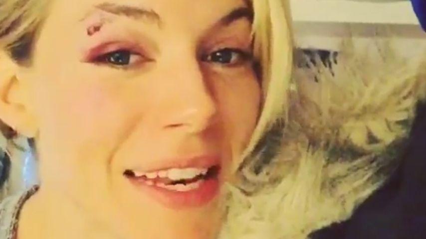 Autsch! Sienna Miller zeigt ihre Bühnen-Verletzung