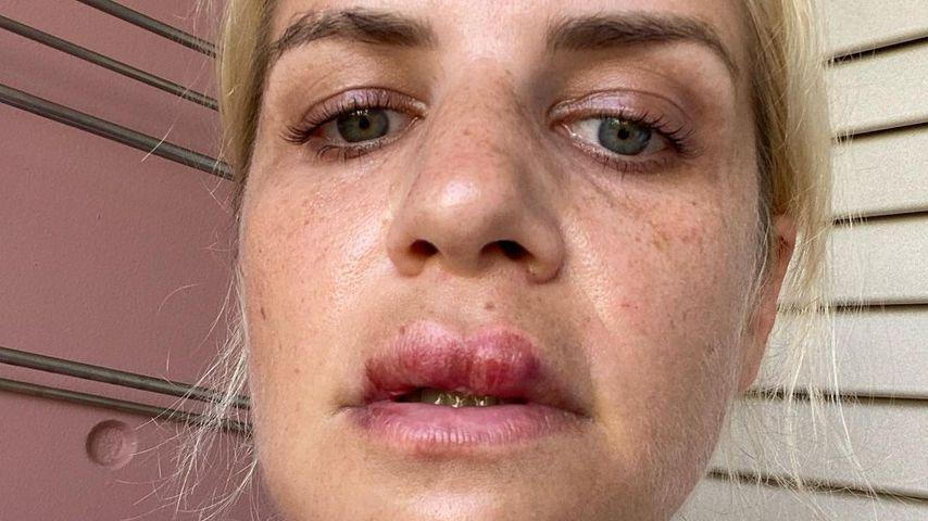 Lippe geschwollen: Susan Sideropoulos stürzte im Urlaub
