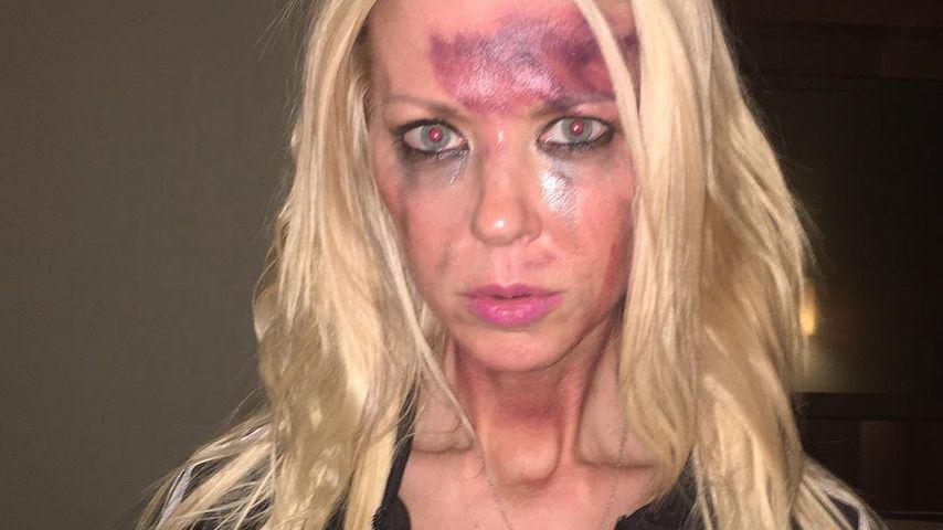 Schlimme Wunden im Gesicht: Was ist mit Tara Reid passiert?