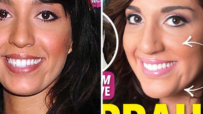 Teen Mom Farrah schockt mit Gesichts-Operationen!