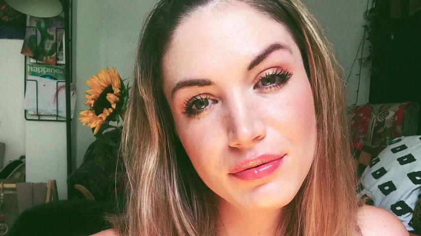 EX-GNTM-Star Tessa Bergmeier: Patchwork-Fragen nerven sie!