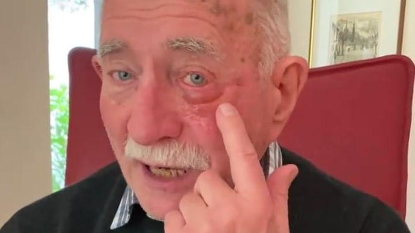 """""""Heftige"""" Augen-OP: Werner Hansch gibt ein Gesundheitsupdate"""