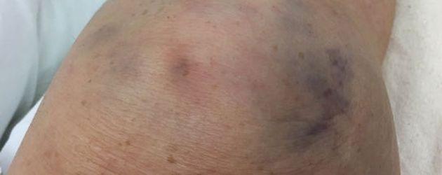 Roseanne Barr erlitt im Oktober 2016 einen Kniescheibenbruch
